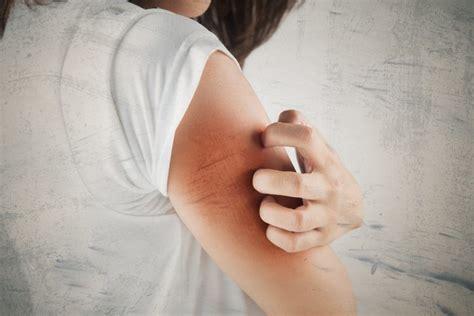 Obat Gatal Eksim Dermatitis membedakan eksim akibat alergi dan eksim akibat iritan