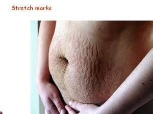 Reese Is Happy With Stretch Marks And All by Baiden Mitten For Stretch Marks Baiden Mitten