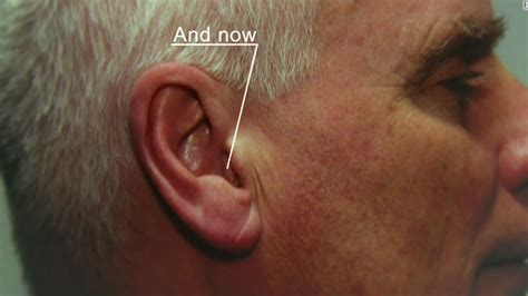 most comfortable hearing aids pitch perfect the quest to create the world s smallest