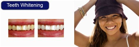 teeth whitening plymouth teeth whitening smile care cosmetic centre