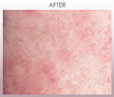 Scabies Treatment by Scabies Treatment Images