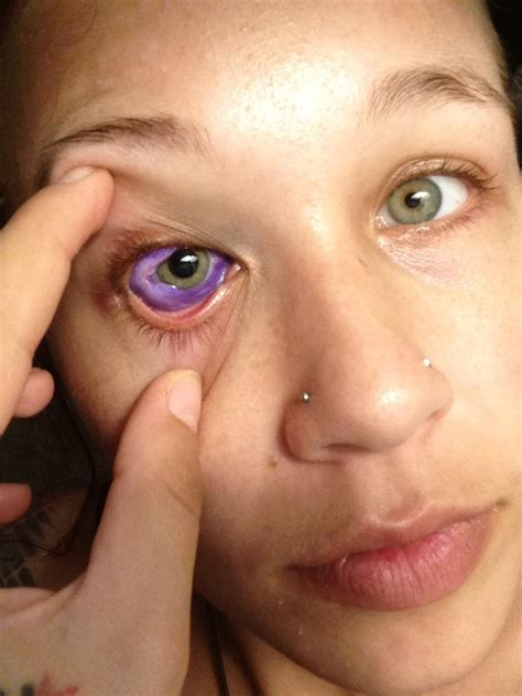 eye tattoo side effects model nearly loses eye after sclera tattoo why she did it