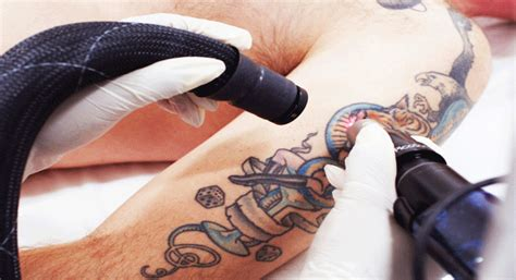 tattoo removal bakersfield removal city bakersfield removal near me