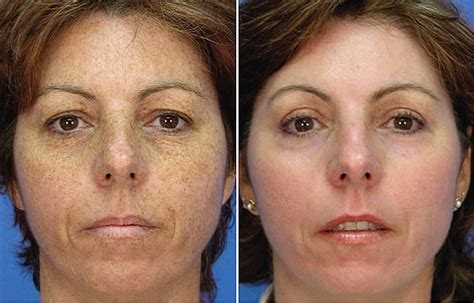 picosure laser focus for melasma amp skin rejuvenation
