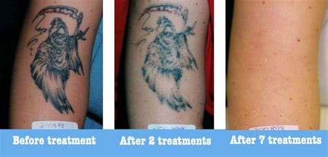 tattoo removal liquid 13 best before after outline aesthetic laser clinic