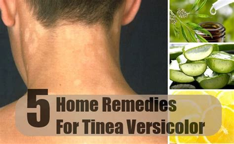 best treatment tinea versicolor 1000 images about tinea versicolor on