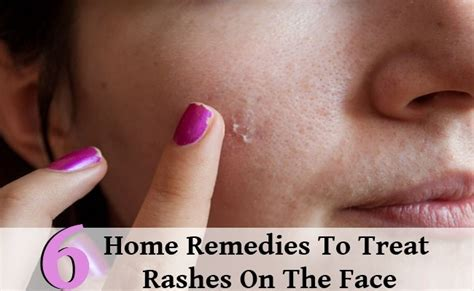 7 Ways To Soothe Skin Irritations by 6 Great Home Remedies To Treat Rashes On The Diy