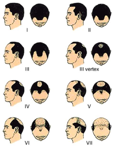 male pattern baldness exles łysienie androgenowe leczenie hair medica klinika włos 243 w