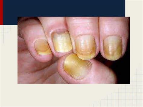 imagenes de uñas con onicomicosis patolog 237 a ungueal patologia de la u 209 a onicomicosis