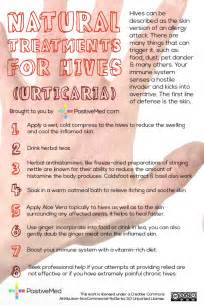 hives home remedy treatments for hives positivedrugs positivedrugs