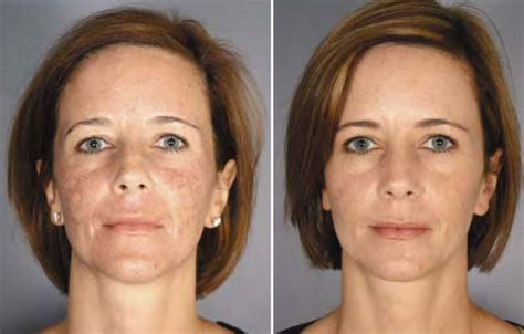 ablative laser resurfacing skin resurfacing laser lumenis image gallery lumenis laser treatment