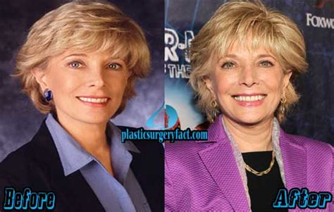 how to cut hair like leslie stahl leslie stahl before and after plastic surgery http