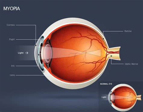 diagram mata image gallery myopia diagram