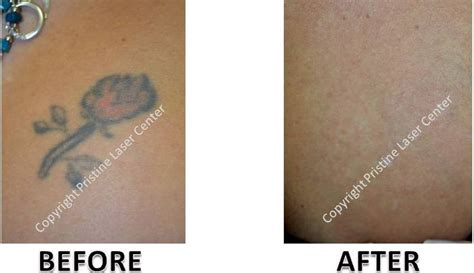 laser tattoo removal orlando laser removal before and after photos orlando