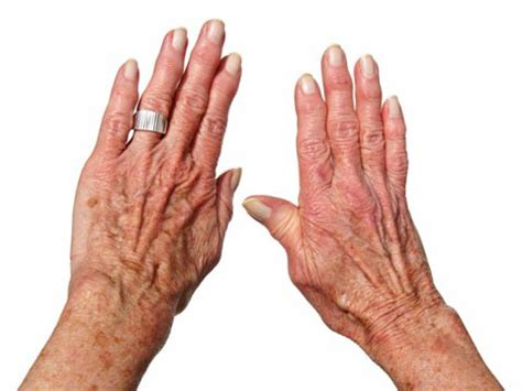 Bony Knobs On Finger Joints by Joint By Joint How Osteoarthritis Affects Your