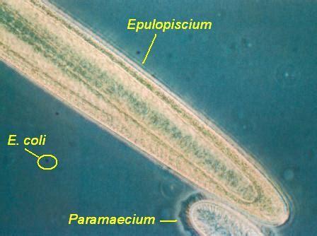 Bio Ukuran Besar 3 ukuran dan bentuk bakteri bio bakteri