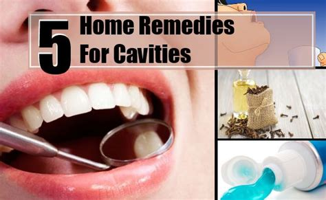 home remedies for dental cavities