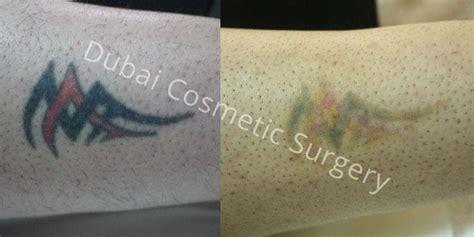 tattoo removal dubai laser removal dubai abu dhabi dubai cosmetic surgery