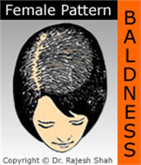 male pattern baldness test pattern baldness genetics 171 browse patterns