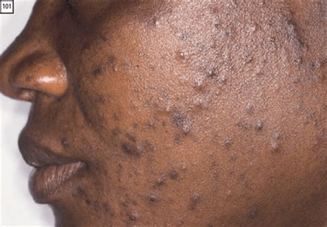 african american scar removal cream acne and dark skin types