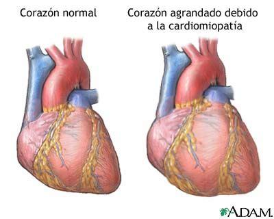 el corazn helado volumen b009kaaw8g miocarditis