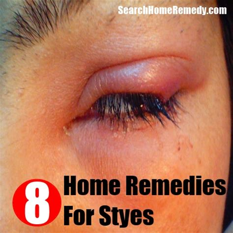 8 styes home remedies treatments cures search