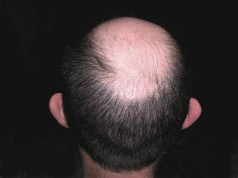 what cause prople bald in crown hair loss explained how and why men go bald the independent