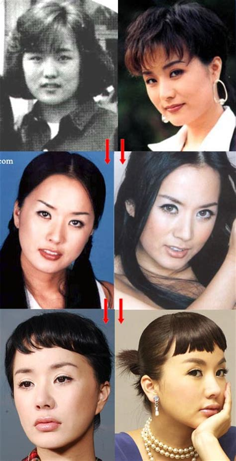 Designer Cosmetic Surgery Craze Newsvine Fashion 3 by Korean Before And After Plastic Surgery Pictures