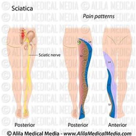 sciatic nerve location diagram alila media selective dorsal rhizotomy