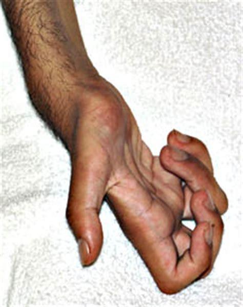 farbers disease farber lipogranulomatosis