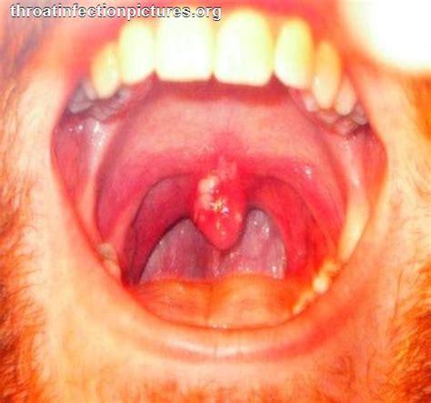 sore throat back of throat white sore in throat newhairstylesformen2014