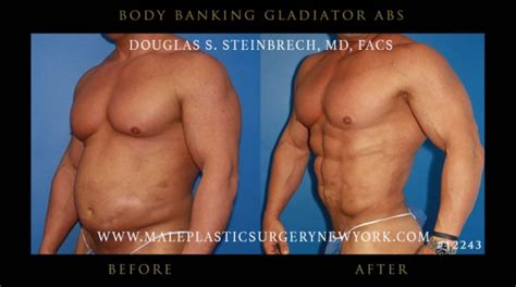 Did Banks Liposuction by Gladiator Abs Gallery
