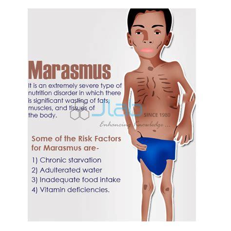 marasmus model india marasmus model manufacturer