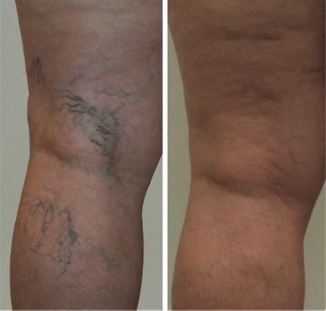tattoo over varicose veins laser spider and varicose vein removal dr matthew