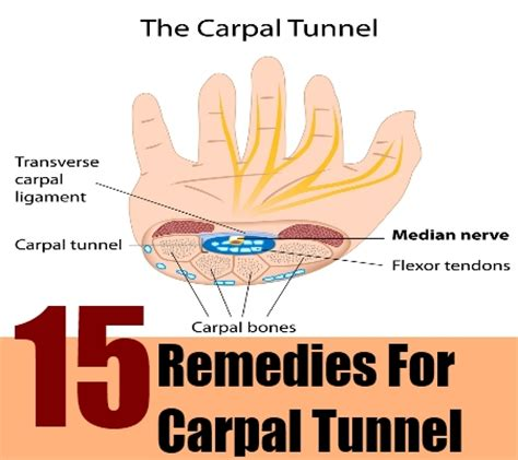 6 cures for carpal tunnel how to cure carpal tunnel
