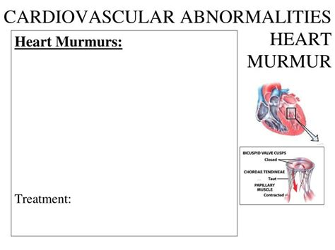 murmur treatment ppt the cardiovascular system powerpoint presentation id 3725401