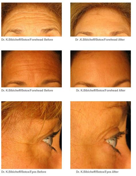 tattoo removal long island ny botox laser liposuction transfer before after