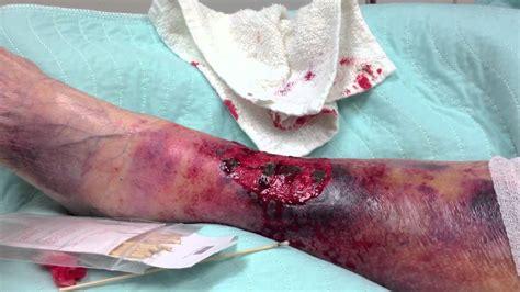 rottura vasi sanguigni skin tear