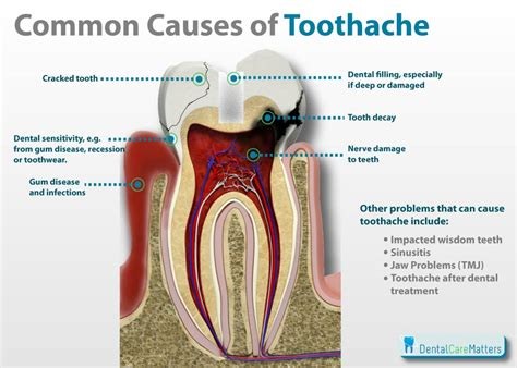 how to get rid of a toothache naturally in less than 12