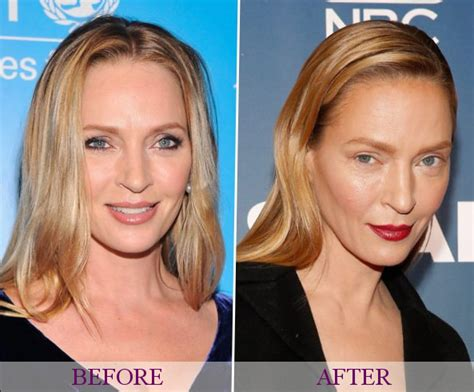 celebrities who have had a neck lift celebrity neck lift ellen degeneres plastic surgery