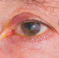 herpes zoster interno senza eruzione cutanea immagini herpes zoster varicella foto sintomi cura e