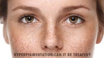 hyperpigmentation treatments o medical clinic