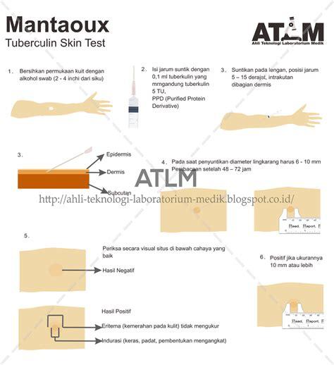 test mantoux pemeriksaan mantoux test tuberculin skin test atlm