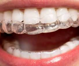 invisalign vs traditional braces invisalign vs traditional braces what s the right