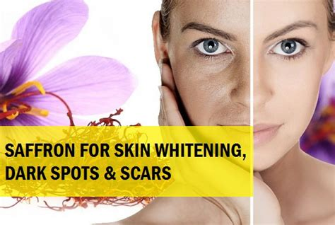 Whitening Glowing Acne tips and how to use kesar for skin whitening glowing skin