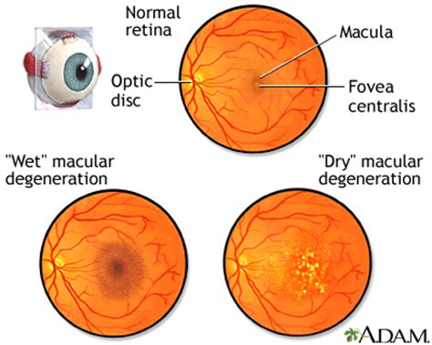 your own finding clear vision in the age of indoctrination books macular degeneration medlineplus encyclopedia image