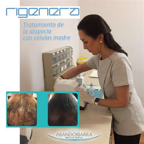 alopecia celulas madre 2016 medicina est 233 tica bilbao tratamientos corporales