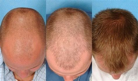 Hair Transplant Types The Best One by Which Is The Best Hair Transplantation Clinic In Kolkata