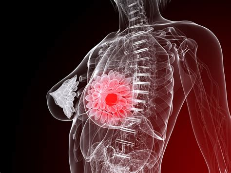 mammary tumor pictures study finds gene that may cause negative breast cancers oncology central