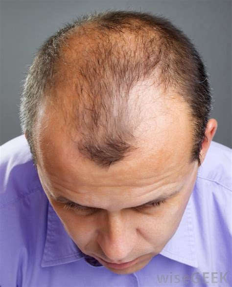 best haircut for thinning hair at the crown how do i choose the best short hair styles for thinning hair
